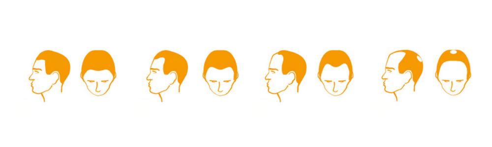 Verlauf des erblich bedingten Haarausfalls