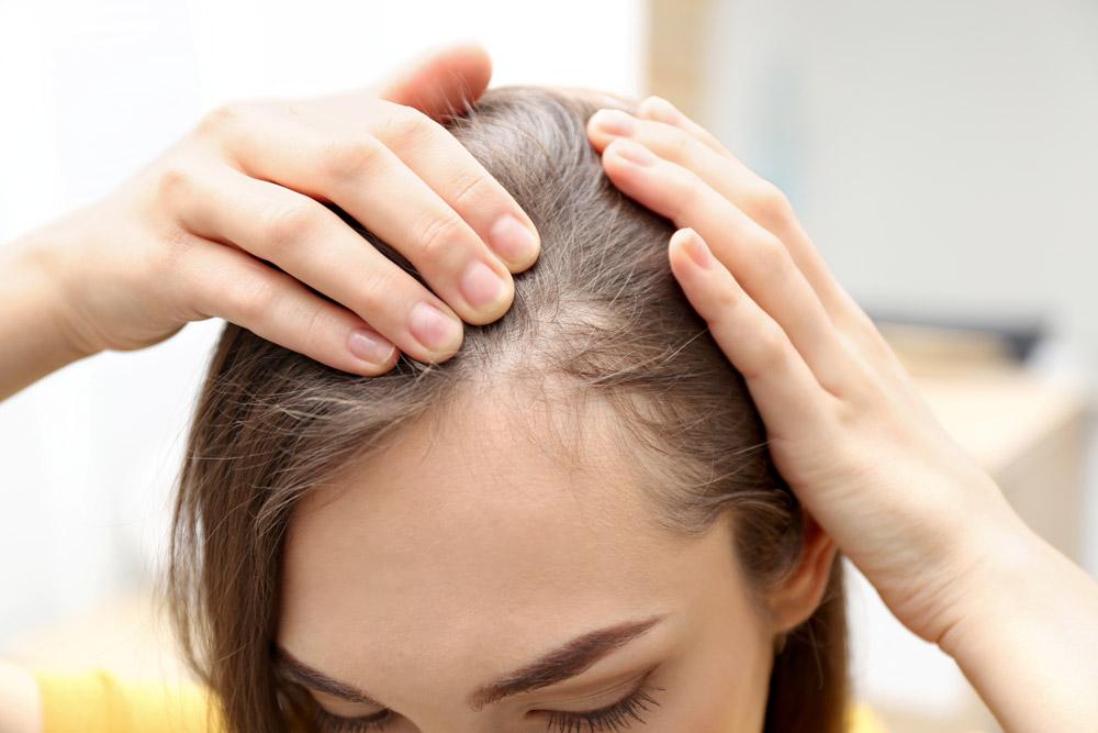 Wie wirkt minoxidil bei Haarausfall